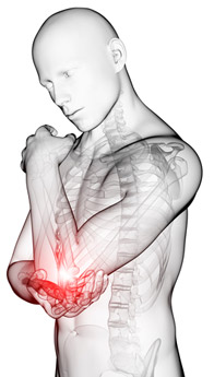 Tennis Elbow - Location of Pain